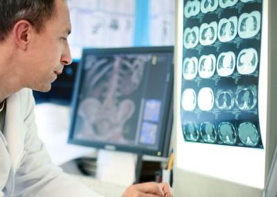 Bispebjerg Hospital og Frederiksberg Hospital: Chipkort giver læger og sygeplejersker hurtig adgang til data
